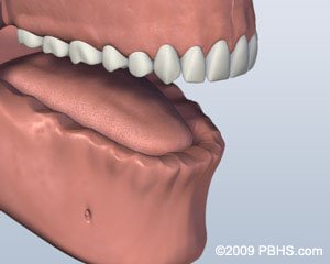 graphic of patient mouth before ball attachment denture thousand oaks