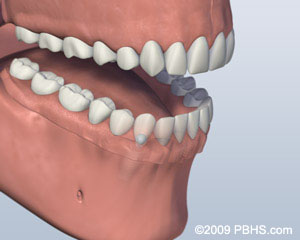 graphic of ball attachment denture installed