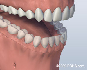 screw attachment denture affixed onto jaw