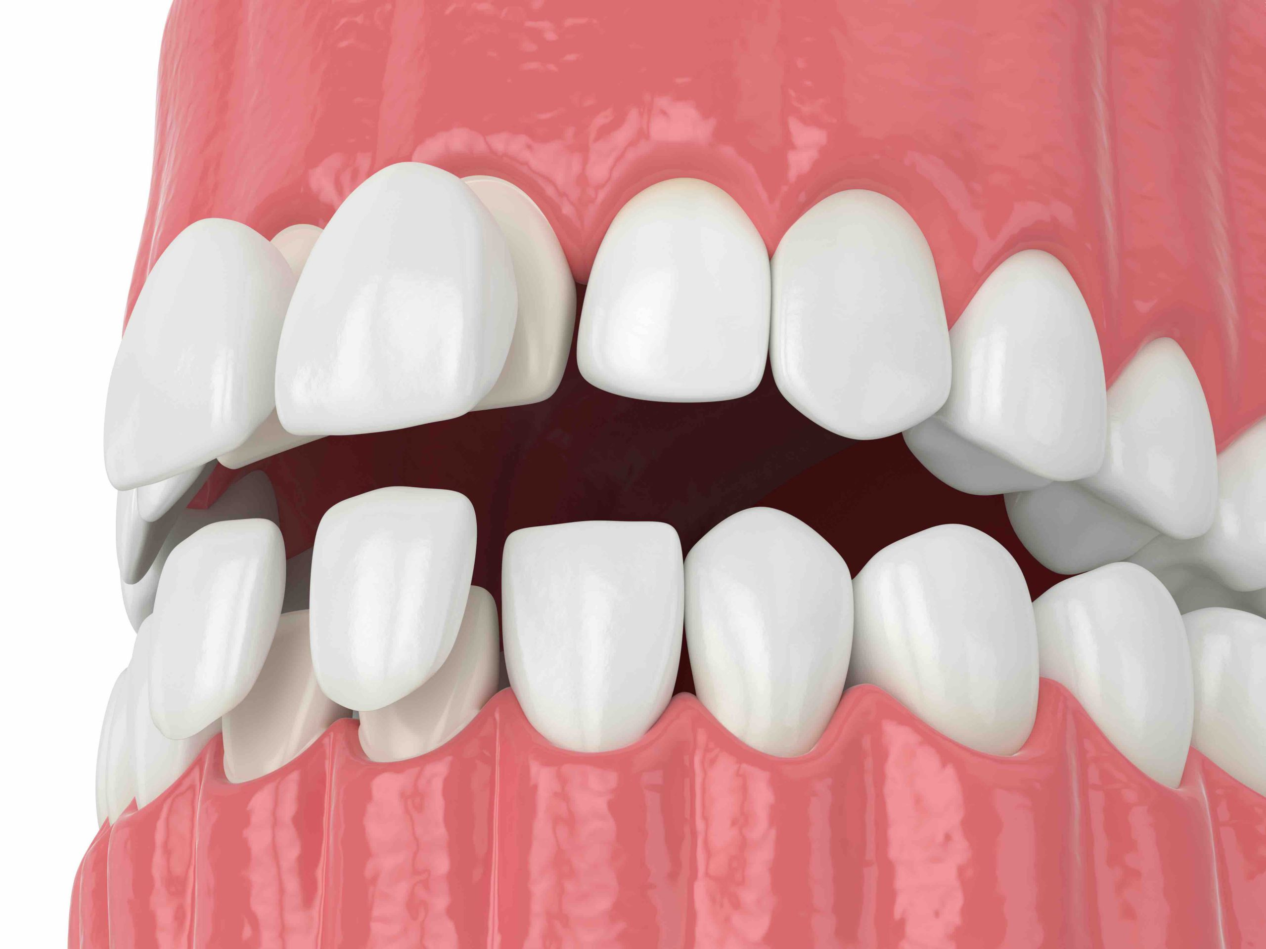 3d render of jaw with upper and lower veneers